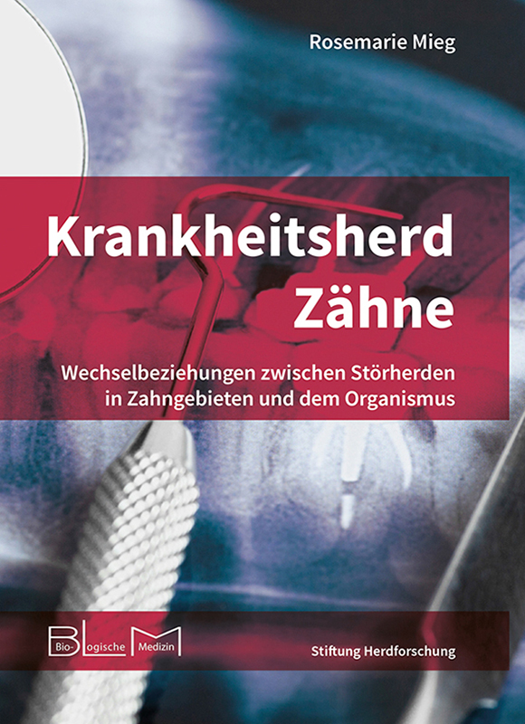 Mieg_Krankheitsherd_Zaehne_978-3-9817813-2-8